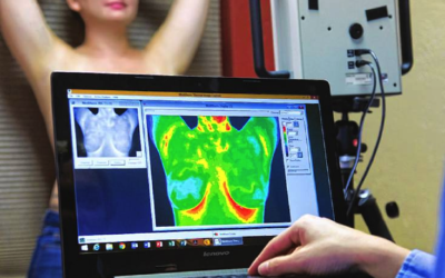 Thermography vs. Ultrasound vs. Mammography